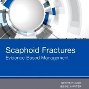 Test Bank for Scaphoid Fractures Evidence-Based Management 1st Edition Buijze