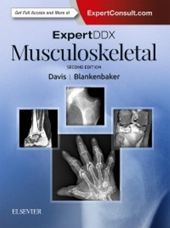 Test Bank for ExpertDDx Musculoskeletal 2nd Edition Davis